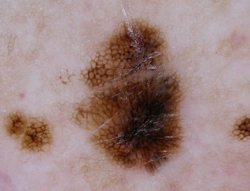 Do you know skin cancer when you see it?