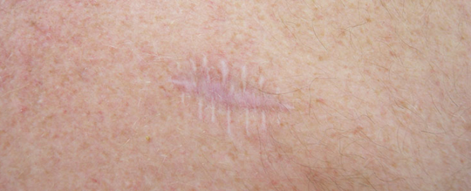 Improving the appearance of scars from skin cancer removal