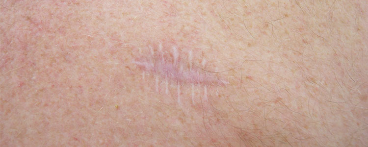 How To Reduce The Appearance Of Surgical Scars Skin Repair