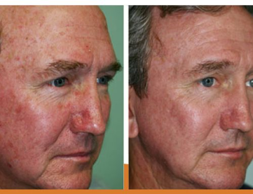 Now is the Time to Reverse your Sun Damage