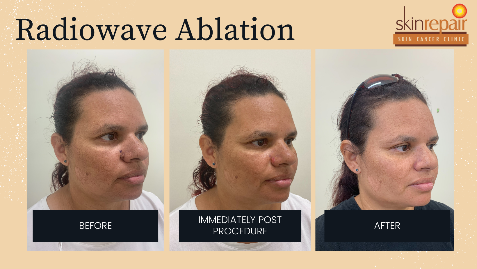 radiowave ablation before after